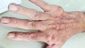 专家介绍:不同时期的痛风患者都会出现哪些不同的临床症状