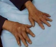 曲靖痛风医院:急性痛风发作如何缓解治疗