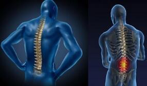 临沧强直性脊柱炎医院:强直性脊柱炎的具体诊断标准