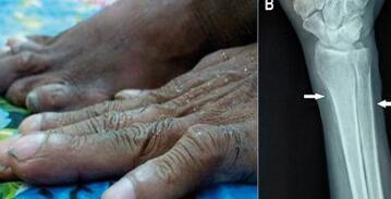 手指弯曲是类风湿症状吗