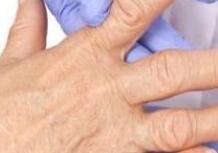 黔东南治风湿医院看看风湿给膝盖造成哪些伤害