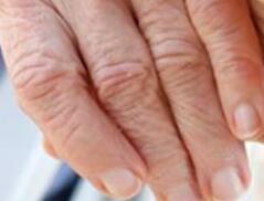 手肘关节发热,疼痛,痛风患者的检查几个细节要小心
